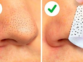 22-EASY-WAYS-TO-REMOVE-BLACKHEADS-FAST-FACE