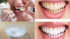 An amazing solution for cleaning your teeth